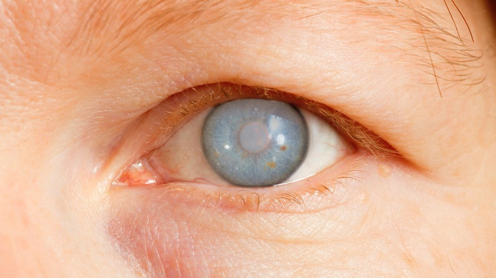 World Glaucoma Week: Experts call for regular eye check