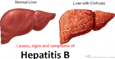 Medical expert decries rise in hepatitis B cases