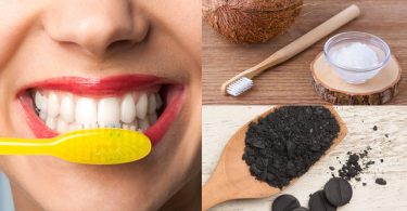 Dentist cautions against use of charcoal, baking soda, others for teeth whitening