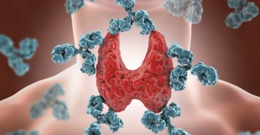 Hashimoto's disease deprives human body of hormones for healthy function – Endocrinologist