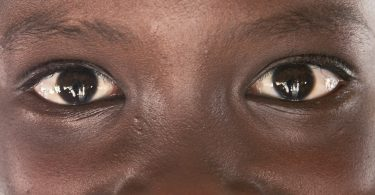 World Sight Day: Ophthalmologist warns against use of breast milk, urine in eye treatment