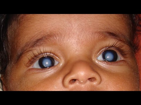 Cataract, common cause of childhood blindness- opthalmologist