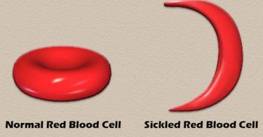 People with sickle cell need love, not discrimination – Haematologist