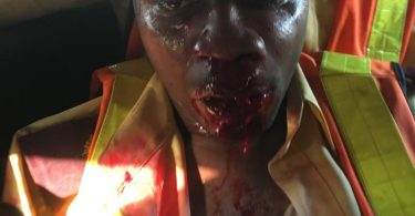 Hoodlums attack, killing LASTMA operative in Ijora, Lagos